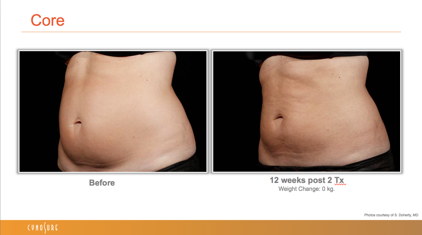 sculpsure_before_after_10