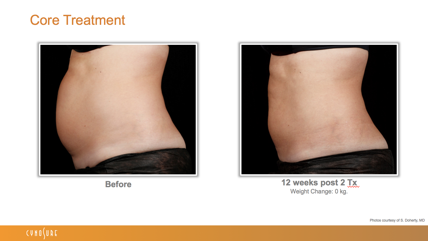 sculpsure_before_after_13