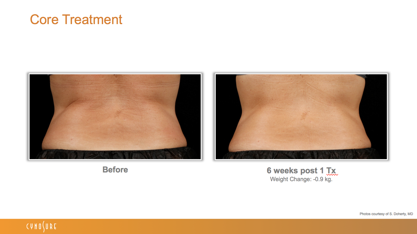 sculpsure_before_after_8