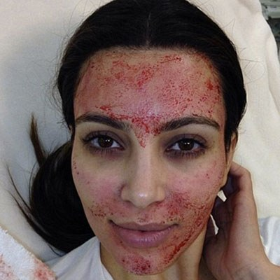 Kim-Kardashian-facial-blood-1-091346_L
