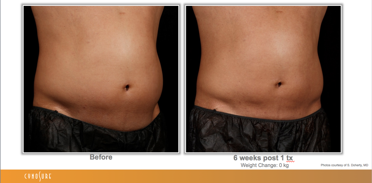 sculpsure_before_after_1