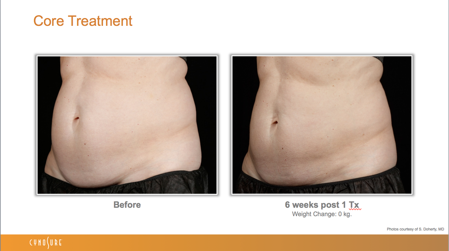 sculpsure_before_after_14