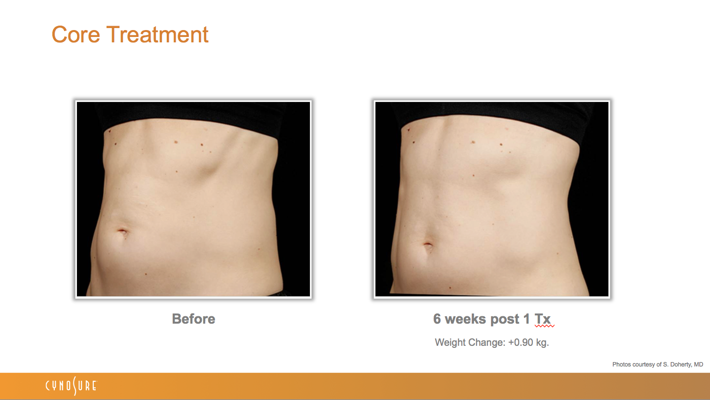 sculpsure_before_after_3