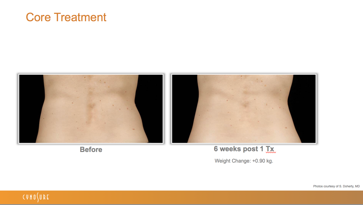 sculpsure_before_after_4