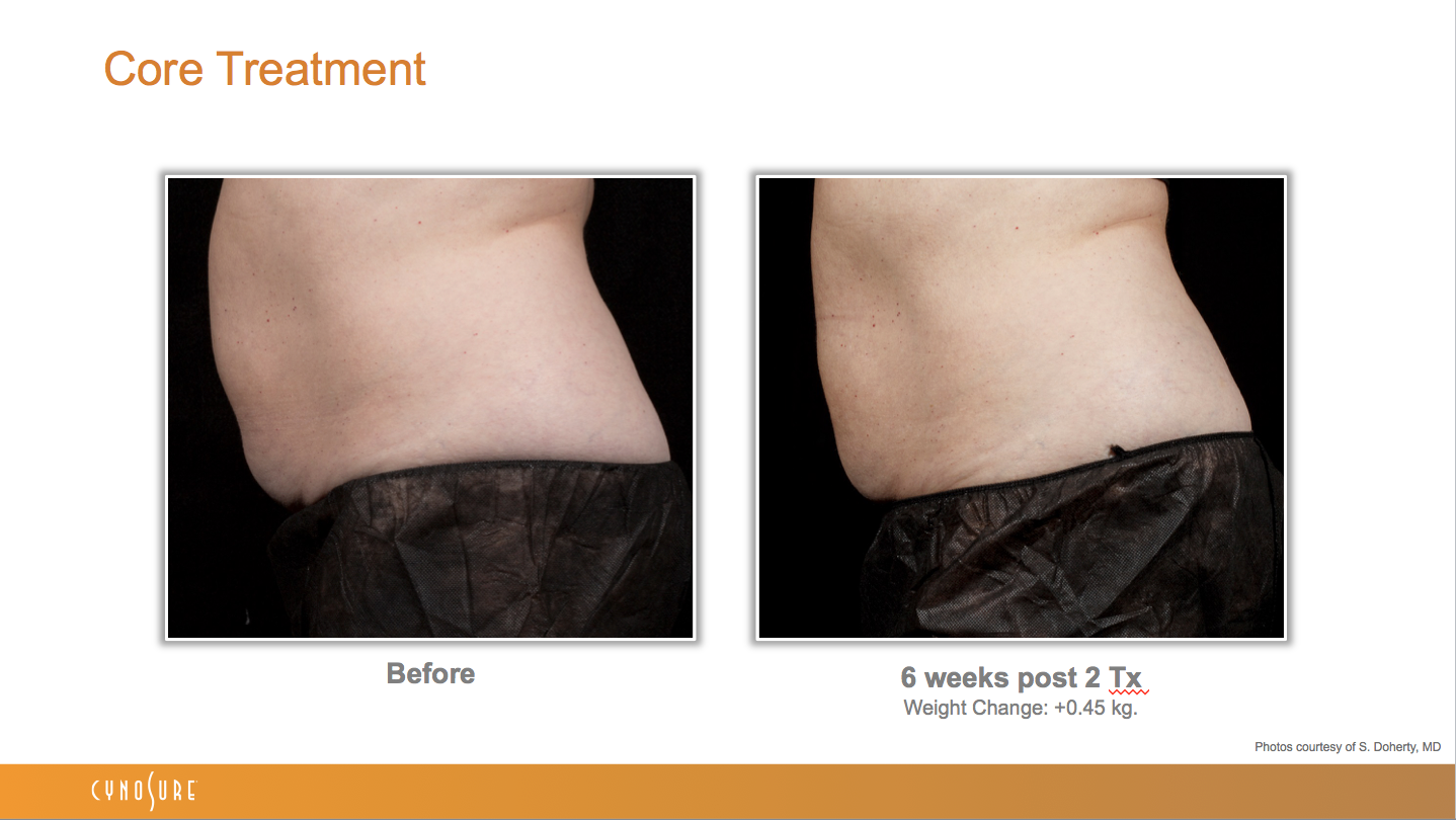 sculpsure_before_after_5