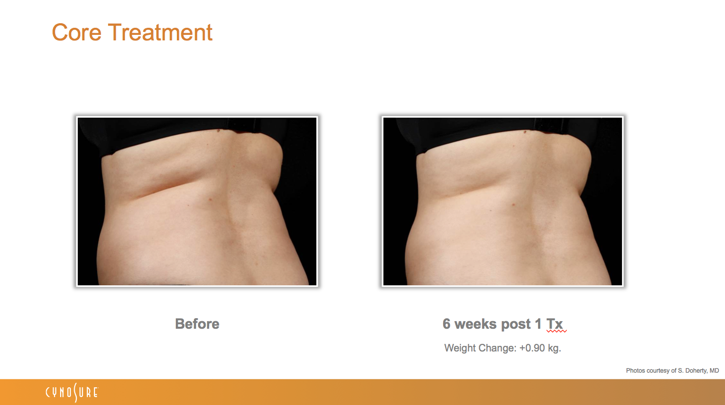 sculpsure_before_after_6