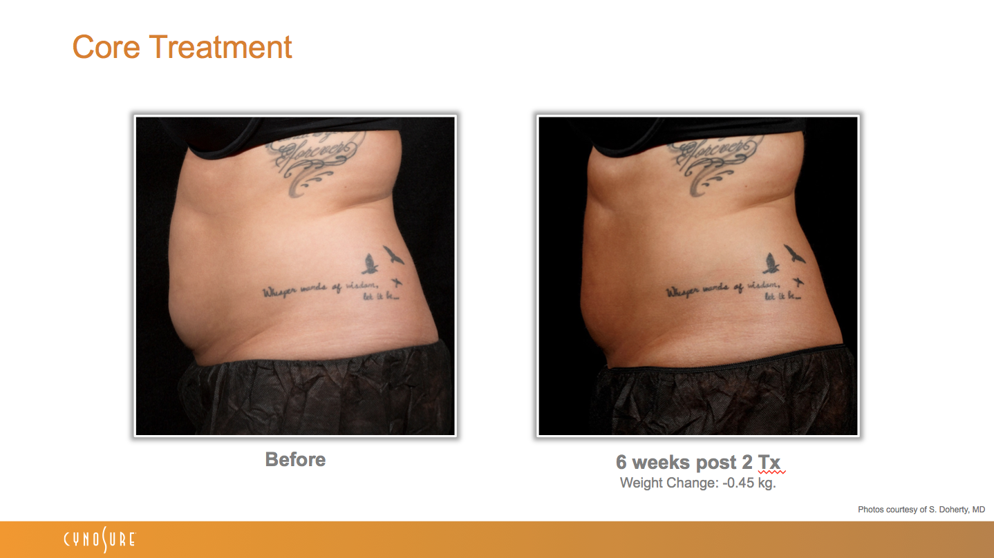 sculpsure_before_after_7