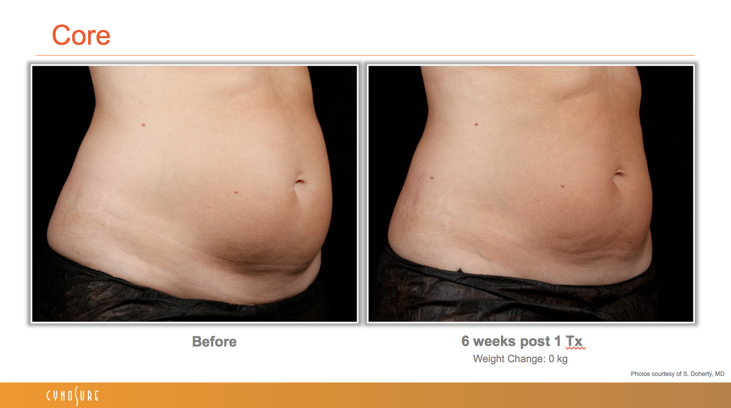 sculpsure_before_after_9