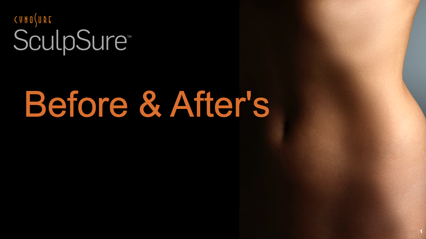 sculspure-before-afters